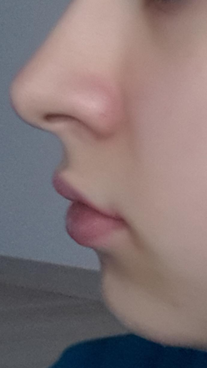 My chin is too masculine.What can I do?