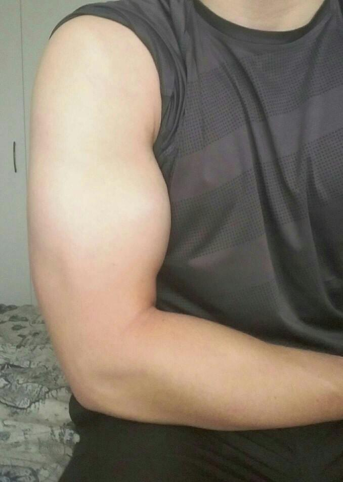 How does my arm look between when I was 14 and now(18)?