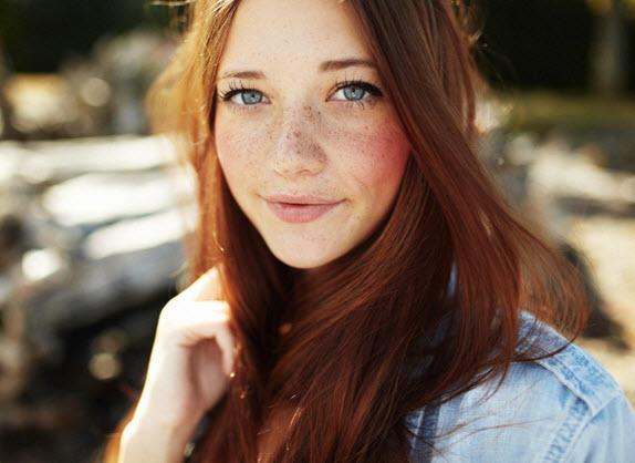 Do you like freckles?