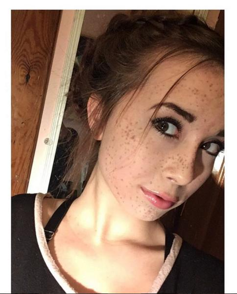 How do guys feel about girls with freckles?