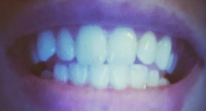 Should I get braces?