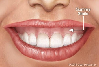 would you date someone with a gummy smile? what do you think about it?
