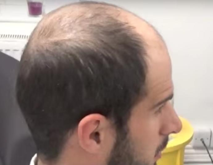 Girls Don't Care About Baldness, Is It True Or Bullshit?
