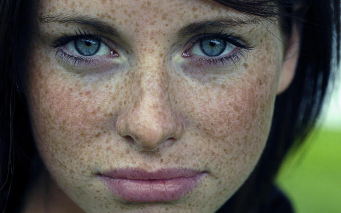 Do you find freckles on women/men attractive or disgusting?