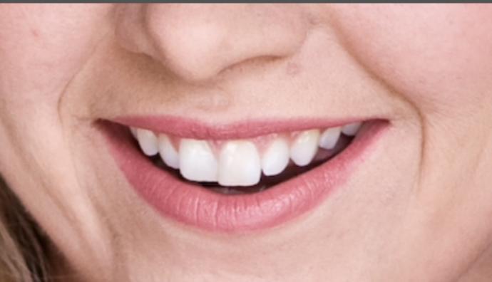 Do u think I should get braces?