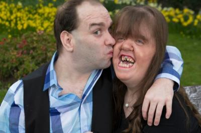 Dating with facial deformity