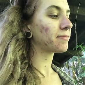 Would you date girls with acne?