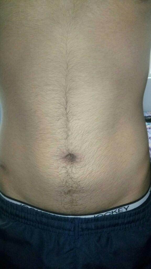 Trouble with hairs over stomach.?