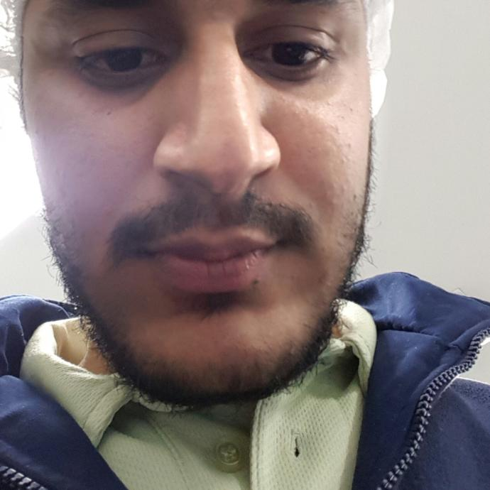 Hey guys i am planing to grow beard and moustache.  But i feel i look terrible with itchy beard..have a look and what would you suggest to do..?
