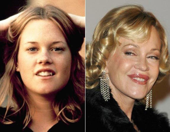Do celebrities go to far with plastic surgery?