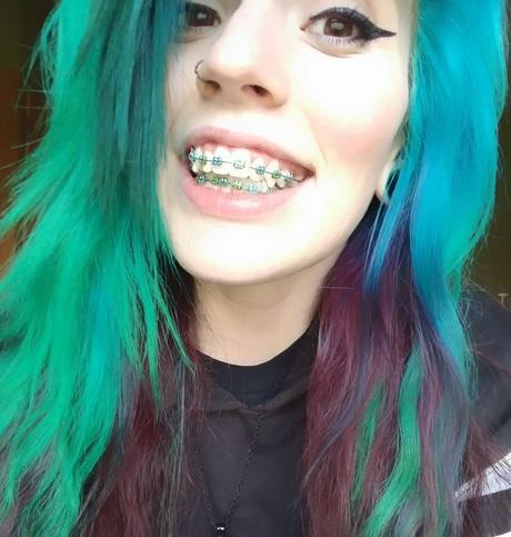 Girls, I got my braces colours changed to match my hair, what do you think?