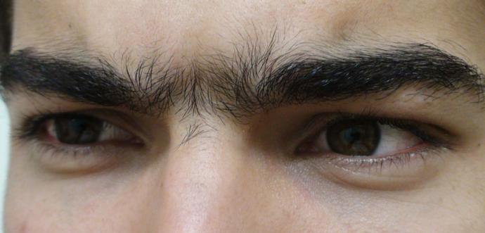 Would you rather: have a unibrow or no eyebrows at all?
