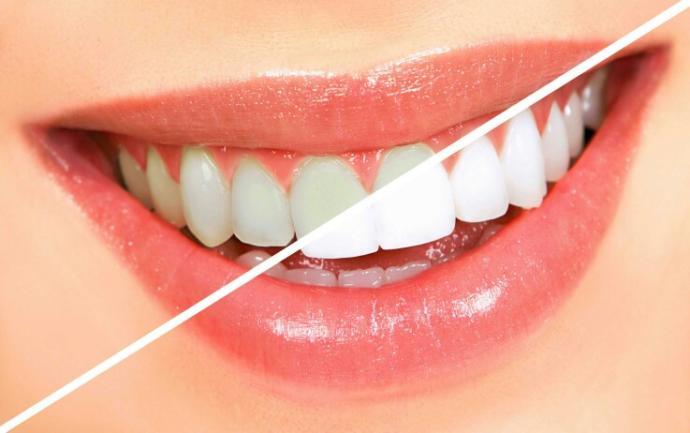 Teeth Whitening Options??