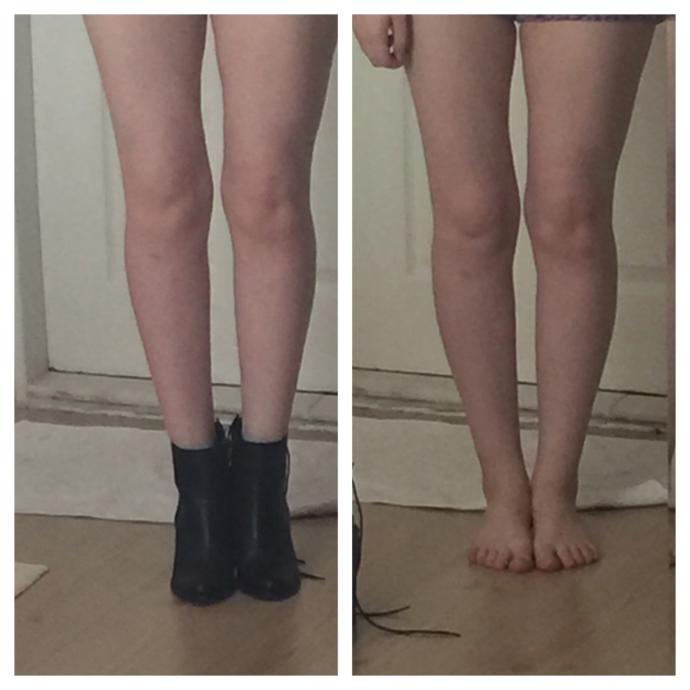 I hate my legs?
