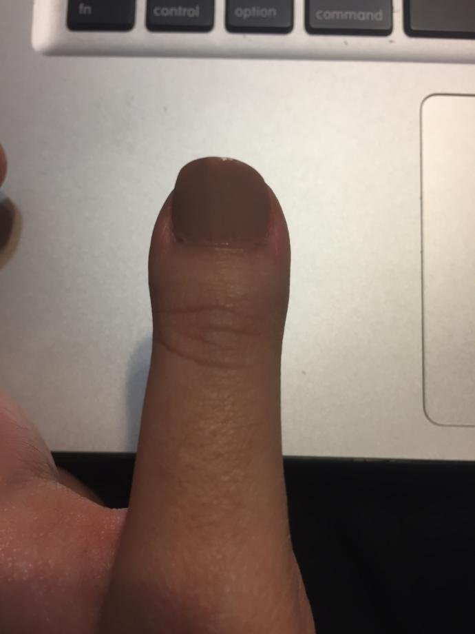 Would it bother you if your SO had a clubbed thumb?