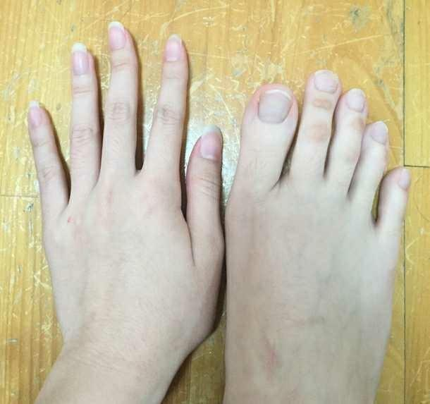 Would your partner's attractiveness change if his/her feet were ugly??