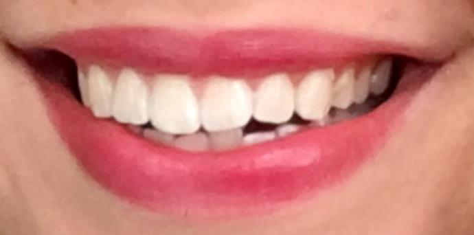 Does this teeth look like bleached?