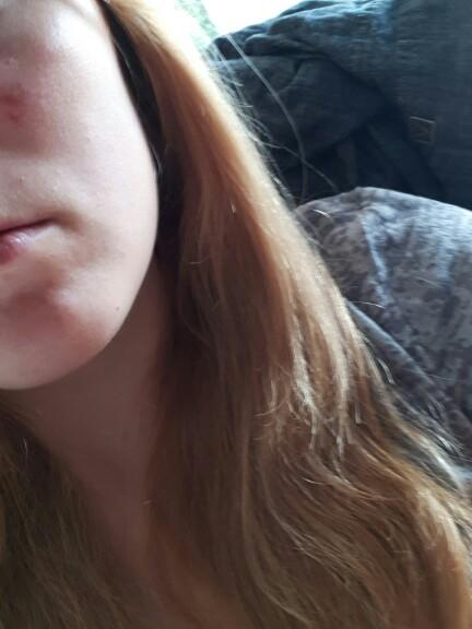 How To Once And For All Stop Getting Acne Scars.?
