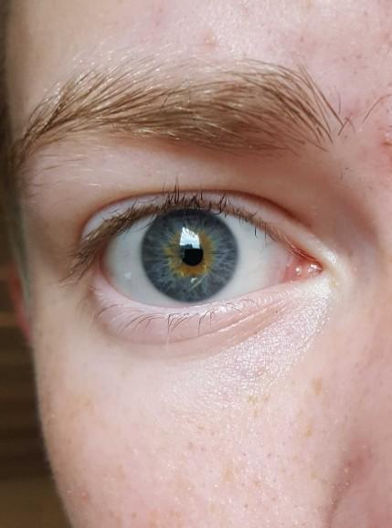 what color is my eyes??