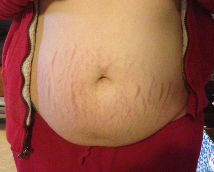 Are stretch marks on pregnant bellies a turn off? (Pics included)?