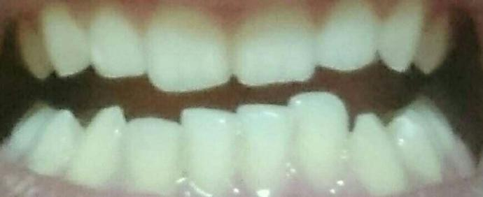 my lower teeth are bothering me so much because they are not identical , should i do anything about this or it's not very important??
