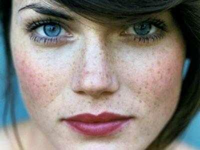 Girls do you realise that freckels are cute??