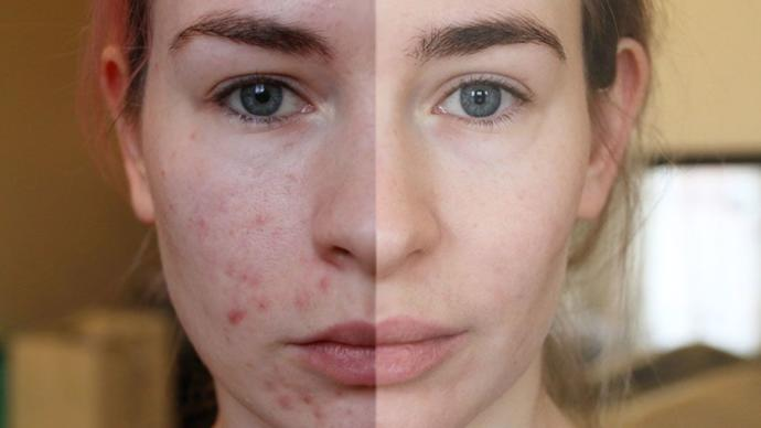 What Causes Adult Acne and How Do I Get Rid of It