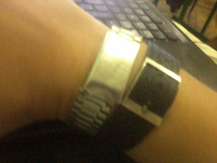 Do my bracelets look normal?