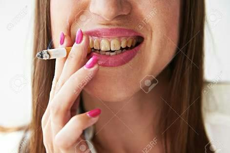 How do movie actors and women in general are able to keep their teeth so white even if they smoke cigarettes??