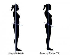 How can I get rid of anterior pelvic tilt (ATP)?