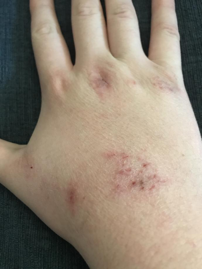 What type of rash is this on my hand?