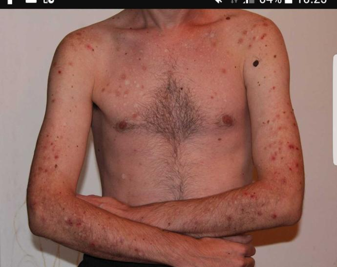 Would/could you date someone (male & female) with self harm scars?