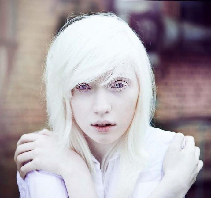 Would you ever date a albino person?