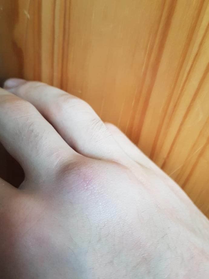 My knuckle is swollen after hitting something hard. Is it ok just to leave it??