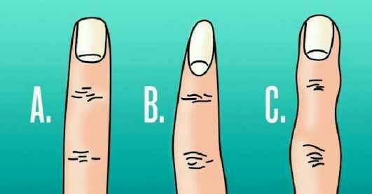 What type of finger do you have?