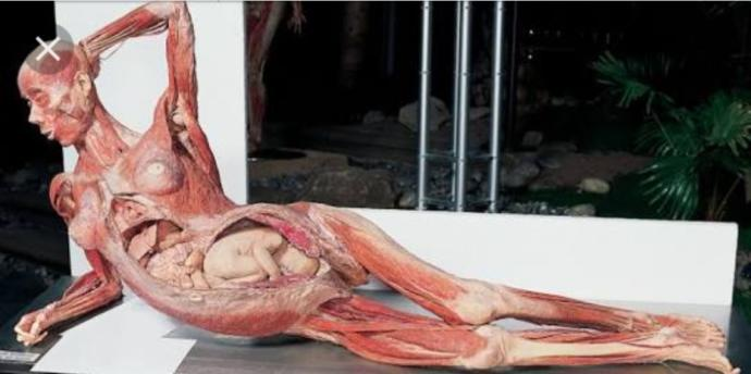 Would you go to this exhibition of bodies if you had the chance?