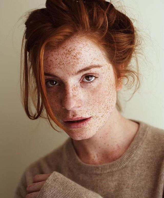 Have you ever seen a person that has freckles all over the face in real-life?