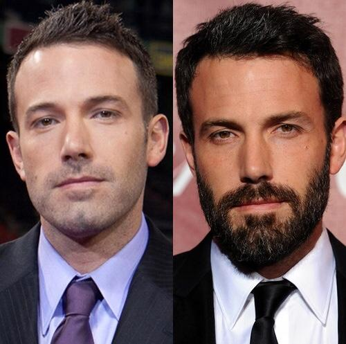 Do guys really look a whole lot better with beards?