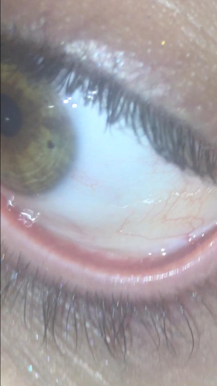 What do you know about Pinguecula? do you think my eye is okay?