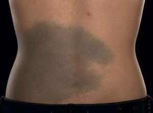 Are large birth marks a turn off?