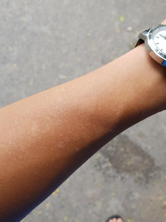 Skin problem after strong sunlight?