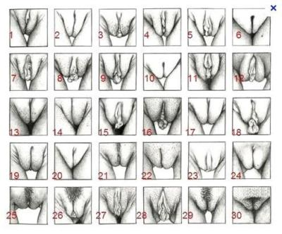 Vegina type