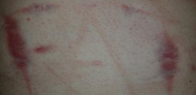 Self injury scars dating after divorce