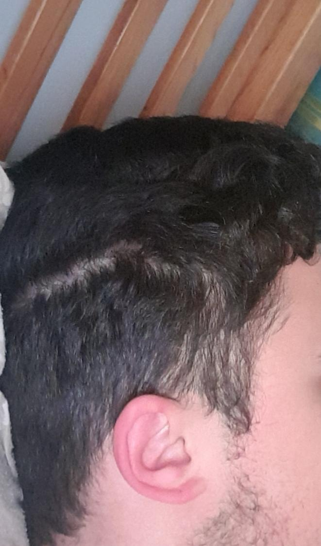 Does it look like I'm going Bald or is it just the way my hair is styled?