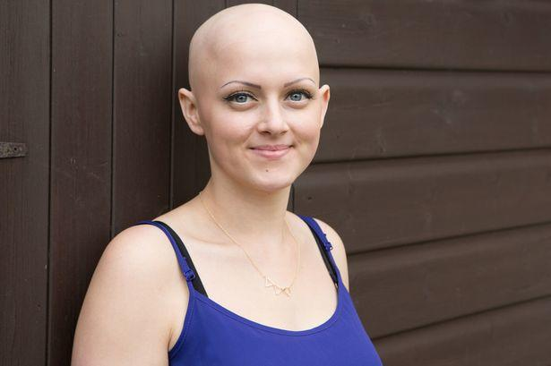 Would you date someone with Alopecia?