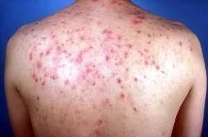 How do you get rid of acne on your back/shoulders?