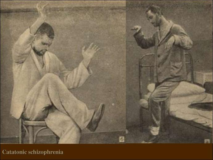 Schizophrenia: Has anybody suffering had a expierence with catatonia, posturing, or wax posing?