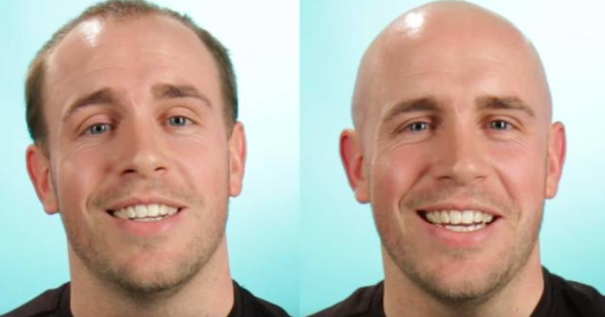 Better bald people who look Can Bald