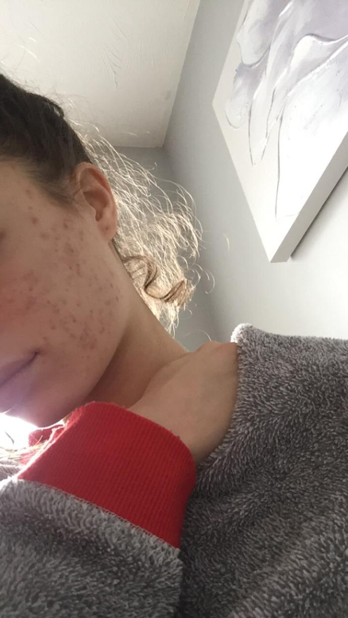 Do I have moderate or severe acne?