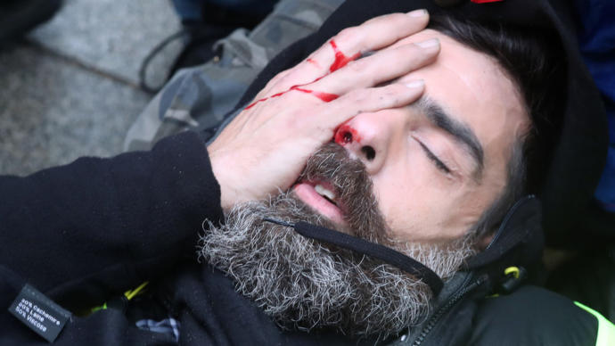 The Yellow vest protesters in France are putting yellow stickers on their eyes because police are targeting them in the eyes, thoughts?